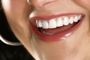 Houston Dentist Office Veneers